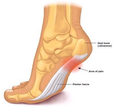 Constant heel pain in foot